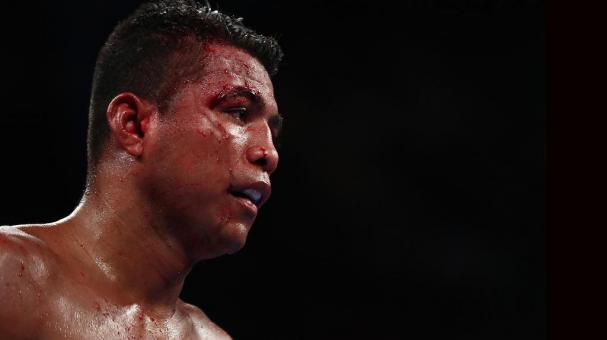 Roman 'Chocolatito' Gonzalez is cut against Srisaket Sor Rungvisai during their Championship fight for Gonzalez's WBC junior bantamweight title at Madison Square Garden on March 18, 2017 in New York City. (Photo by Al Bello/Getty Images)